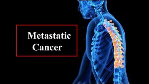 metastatic